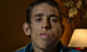 Murió Christian Fritz, el único argentino con sindrome de Proteus