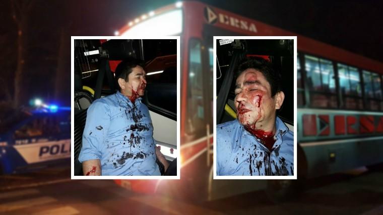 Brutal paliza a un colectivero durante un robo en Córdoba